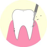 歯ぐきより下の歯石を取る